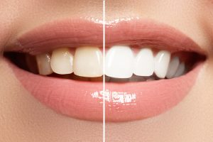 bahan pemutih gigi alami